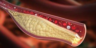 Periferik Damar Hastalıkları Nedir ve Belirtileri Nelerdir?
