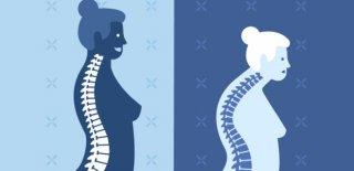 Osteomalazi Nedir? Belirtileri ve Tedavi Yöntemleri