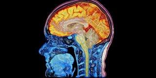 Ensefalit (Beyin İltihabı) Nedir ve Belirtileri Nelerdir?