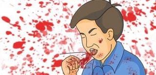 Kan Tükürme (Hemoptizi) Nedir ve Neden Olur?