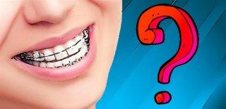 Diş Telleri Hakkında Bilinmesi Gerekenler