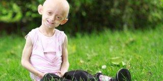 Progeria (Hutchinson-Gilford Sendromu) Nedir ve Belirtileri Nelerdir