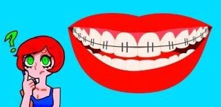 Diş Teli Takanların Dikkat Etmesi Gerekenler