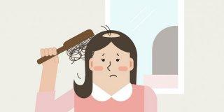 Kadın Tipi Saç Dökülmesi Nedir? Nasıl Tedavi Edilir?