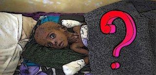Kolera Hastalığı Nedir? - Belirtileri ve Tedavisi Hakkında Bilgi