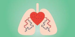 Pulmoner Hipertansiyon Nedir ve Nasıl Tedavi Edilir?