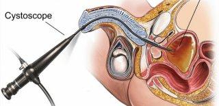 Sistoskopi Nedir ve Nasıl Yapılır?