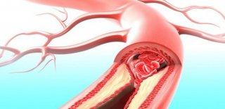 Hiperlipidemi Teşhisi ve Tedavi Yöntemleri