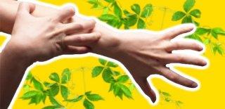 Kaşıntıyı Doğal Yöntemlerle Gidermenin 6 Yolu