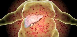 Karaciğer Yağlanması Belirtileri ve Tedavisi