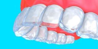 İnvisalign Tedavi (Telsiz Ortodonti)