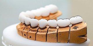 Protetik Diş Tedavisi (Protez Diş)