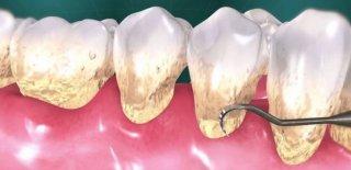 Diş Küretajı Hakkında Bilinmesi Gerekenler