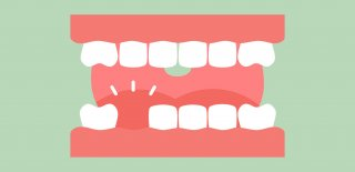 Rüyada Diş Dökülmesi Ne Anlama Gelir?