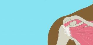 Kas Yırtılması (Lif Kopması) Nedir ve Nasıl Tedavi Edilir?
