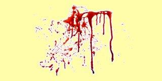 Rüyada Kan Görmek Ne Anlama Gelir?