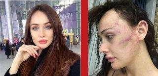 Sırp Model Sevgilisinden Şiddet Gördü; Şikayetçi Oldu