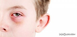 Göz Nezlesi Belirtileri Ve Tedavisi