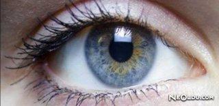 Göz Tansiyonu Nedir? Belirtileri Nelerdir?