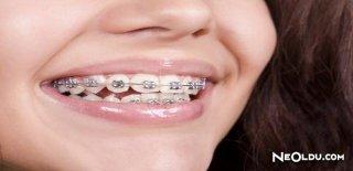 Diş Teli Konusunda Bilinmesi Gerekenler