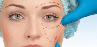 Göz Kapağı Estetiği Nedir, Nasıl Yapılır? Operasyon İle İlgili Uzman Doktor Görüşleri