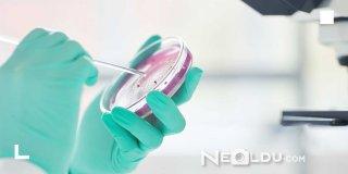 Helicobacter Pylori Nedir, Ne İyi Gelir ve Belirtileri Neledir?