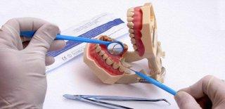 Diş Kisti Nedir? Diş Kistinin Belirtileri ve Tedavisi