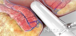 Lazerle Hemoroid Ameliyatı Nasıl Yapılır? 20 Dakikada Basurdan Kurtulmanın Yolu!