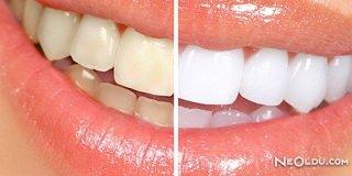 Pratik Yollarla Diş Beyazlatma