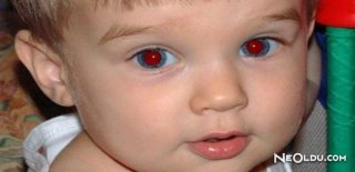 Fotoğraflarda Gözleriniz Kırmızı mı Çıkıyor?