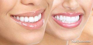 Diş Beyazlatan Besinler